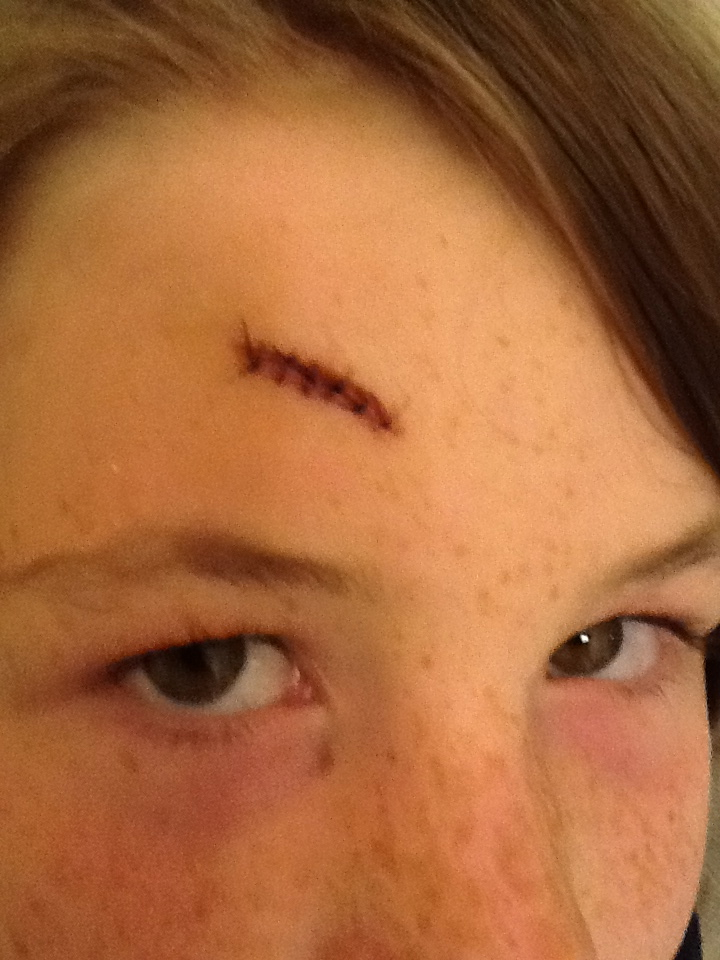 The Stitches on Paris' Forehead